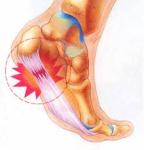 足底筋膜炎-1